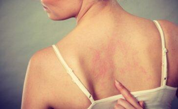 Pokrzywka skórna pokrzywka cieplna rodzaje i przyczyny reakcji alergicznych skóry